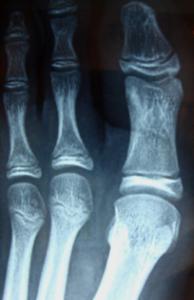 osteoma osteoide 1