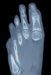 osteoma osteoide2