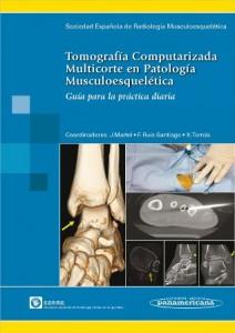 Tomografia Musculoesqueletica