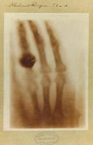 primera-radiografia