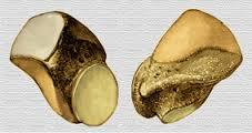 escafoides 1