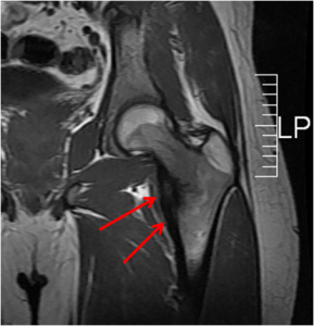 osteoma cadera 2