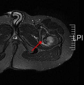 osteoma cadera 3